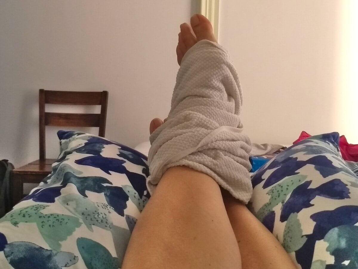Hochgelagerter Fuß mit Handtuch umwickelt.